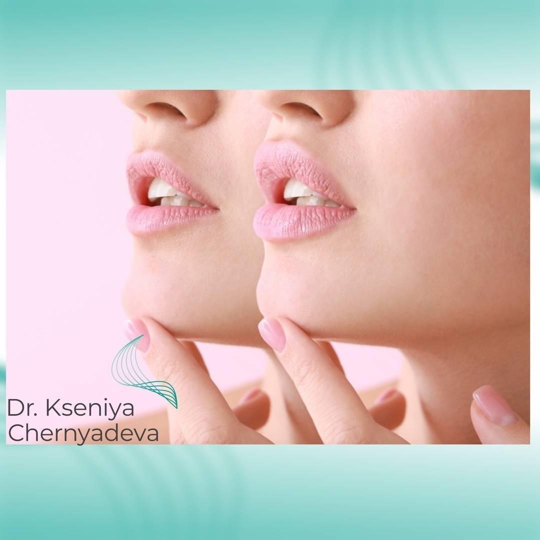 Когда можно красить губы после увеличения гиалуроновой кислотой