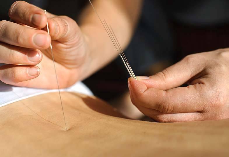 Иглоукалывание - все о лечении иголками, польза и вред, отзывы