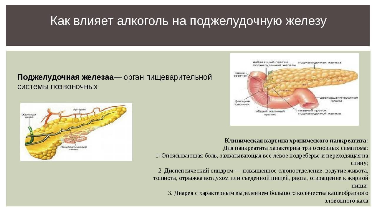 Алкогольный панкреатит: симптомы, диагностика, лечение, прогноз
