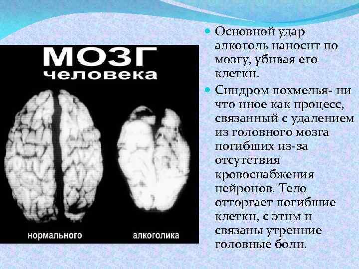 Влияние алкоголя на головной мозг человека.кто поумнел от него