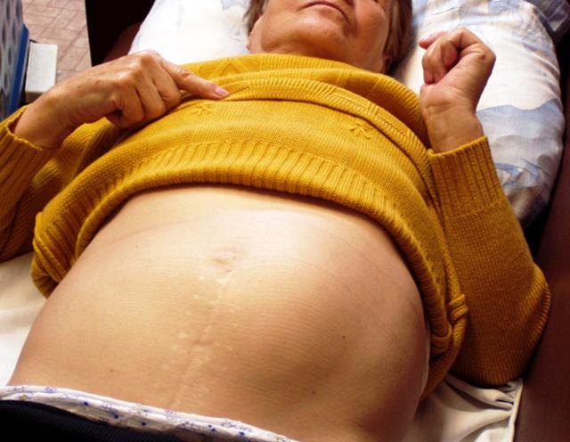 Лечение увеличенной печени - причины, диета и примерное меню, профилактика заболевания