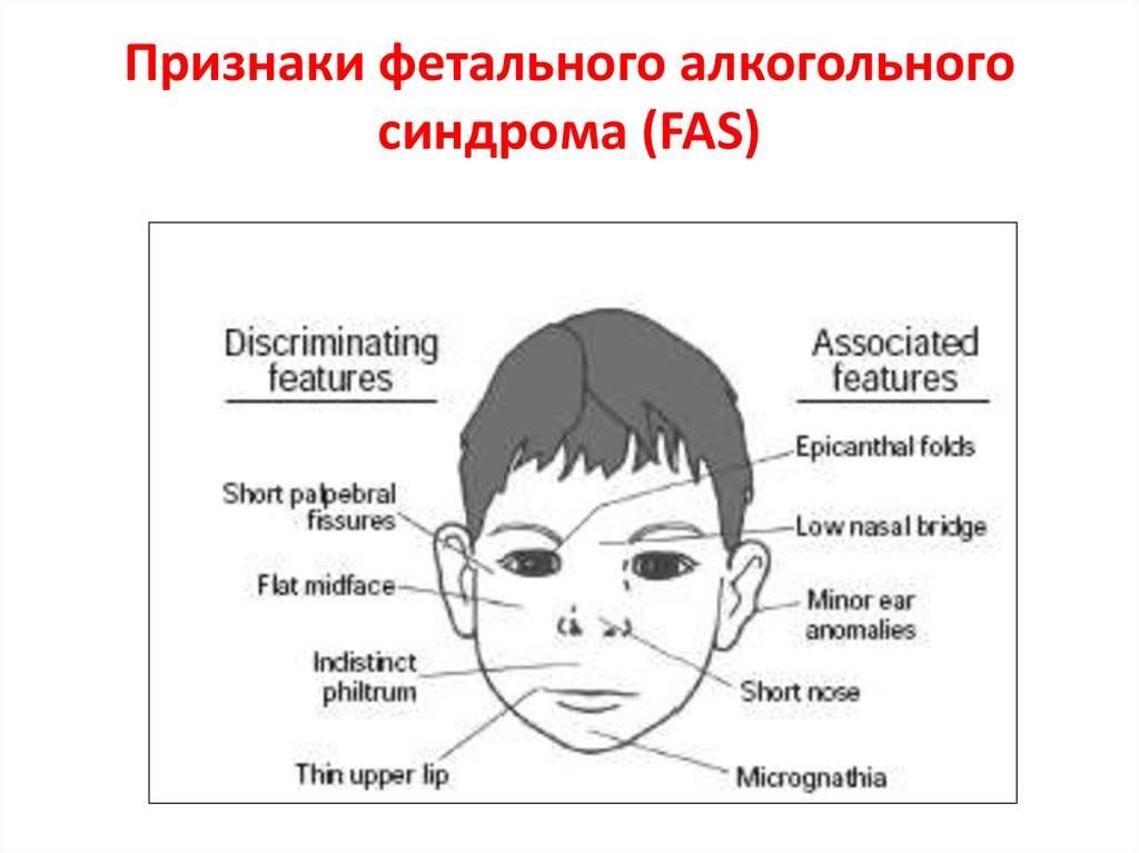 Дети алкоголиков: внешние признаки и психология