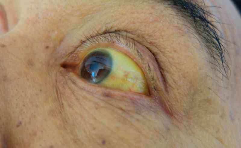 Причины пожелтения глазных белков у новорожденных: опасно ли это для младенца