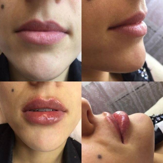 Рекомендации после увеличения губ гиалуроновой кислотой: что нельзя делать после, уход, можно ли курить, чем мазать