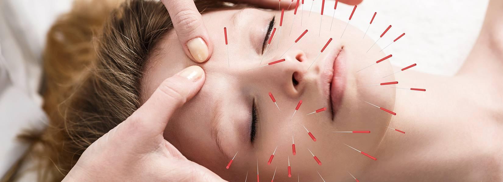 Иглоукалывание: что лечат методом, в чем его польза, где делают и сколько стоит иглоукалывание в москве?