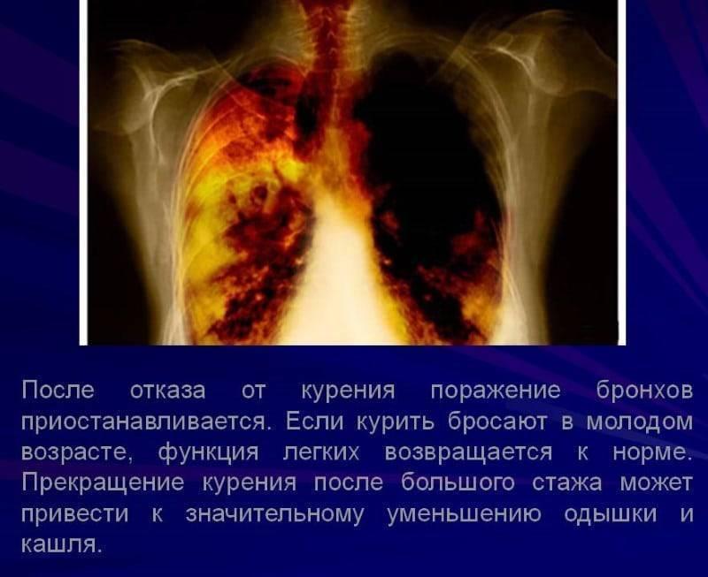 Проблемы, которые могут начаться, когда бросаешь курить