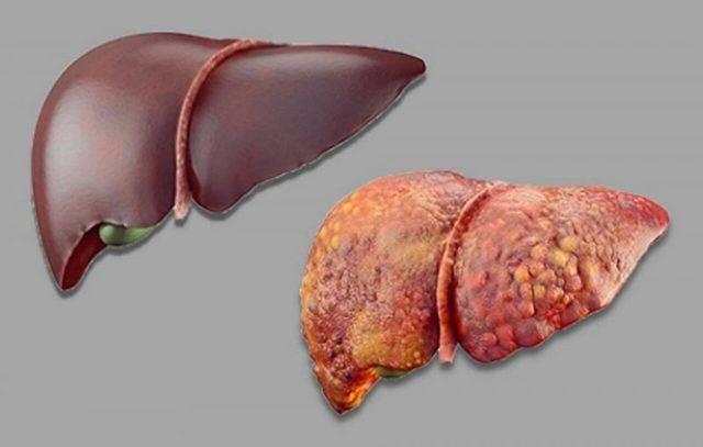 Алкогольный гепатоз печени: симптомы, признаки, лечение