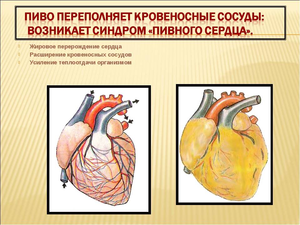Синдром впв сердца: причины, симптомы, и лечение
