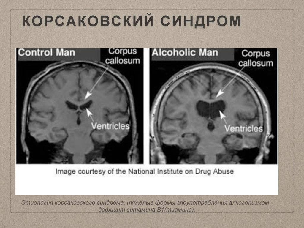 Корсаковский синдром: что это за расстройство и почему оно развивается?