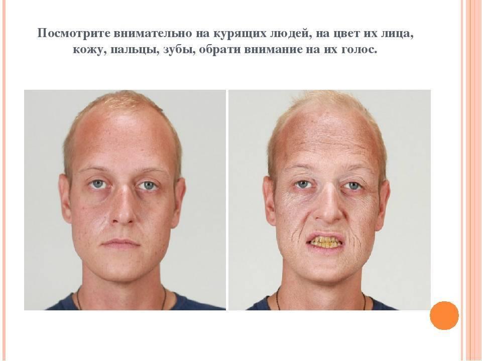 Сколько восстанавливается кожа после отказа от курения?