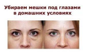 """Как быстро убрать отеки под глазами - """"здоровое око"""""""