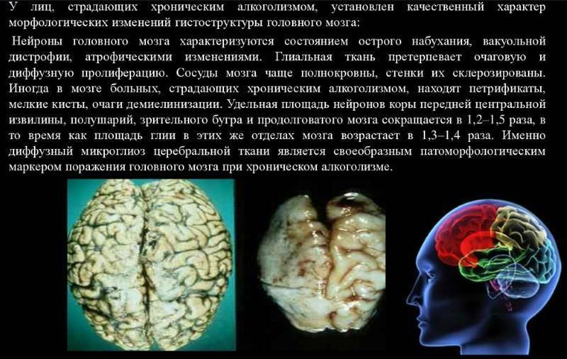 Кома и отек мозга: причины развития, прогноз и последствия