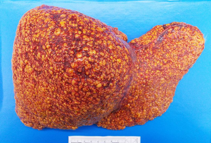 Цирроз печени: симптомы, лечение. сколько живут с циррозом