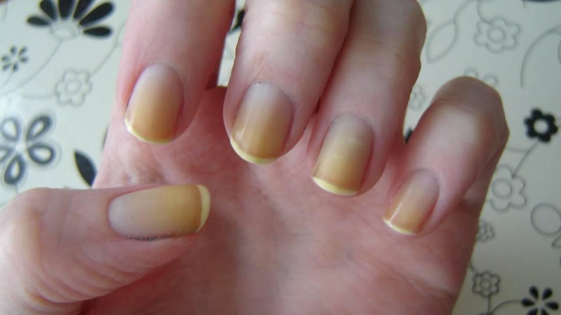 Как отбелить желтые ногти после лака - мы расскажем обо всем