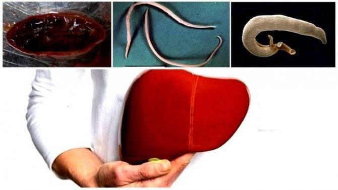 Стул при циррозе печени - здоровыйжелудок