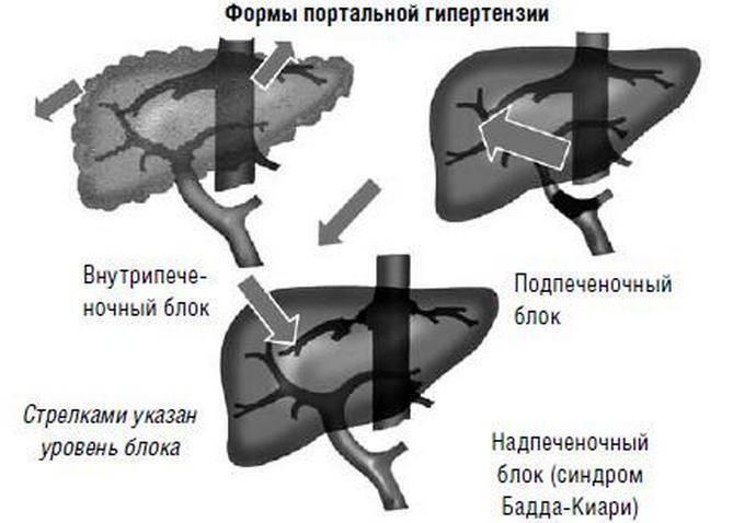 Осложнения портальной гипертензии при циррозе печени