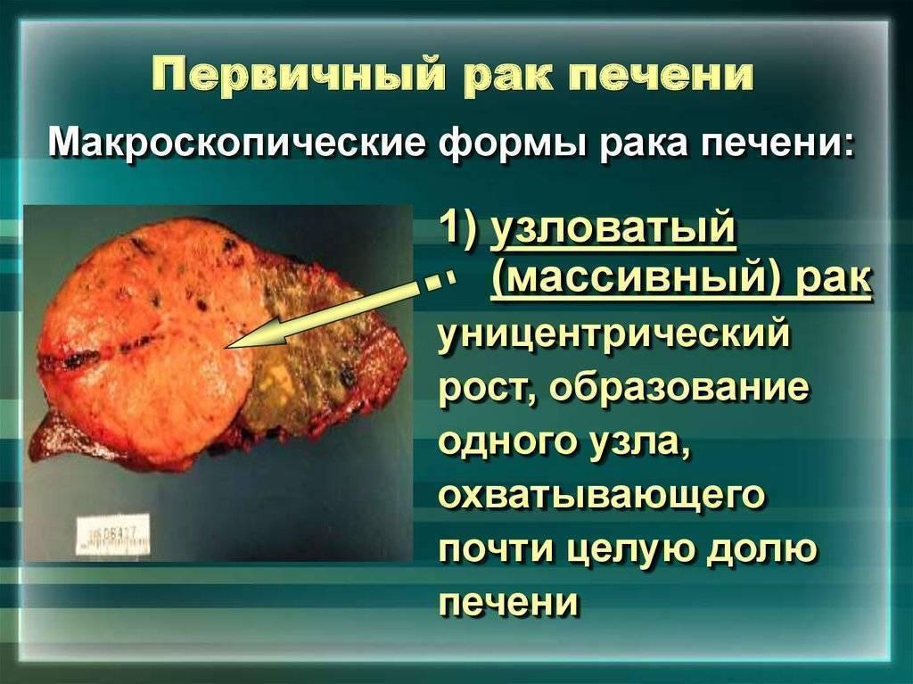 Фиброз печени и цирроз печени: отличия и сходства