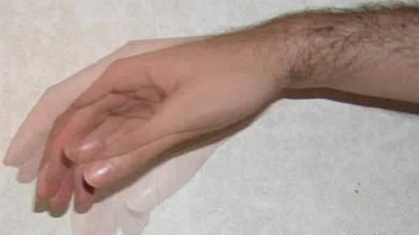 Как называется болезнь когда трясутся руки - тремор: синдромы, причины, как лечить, что делать в первую очередь