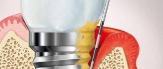 Можно ли курить после отбеливания зубов? можно ли курить после отбеливания зубов