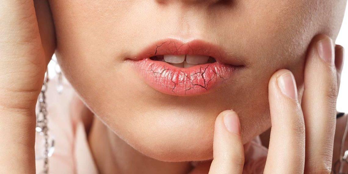 Список рекомендаций после увеличения губ: что можно, а что нельзя
