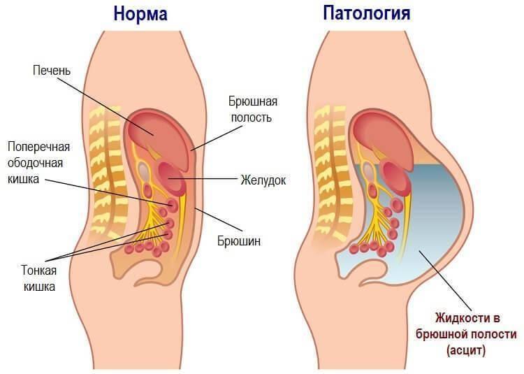Лечение асцита брюшной полости при онкологии народными средствами