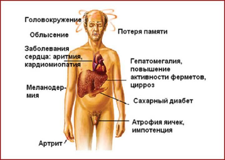 Печеночная недостаточность: симптомы, лечение, диагностика