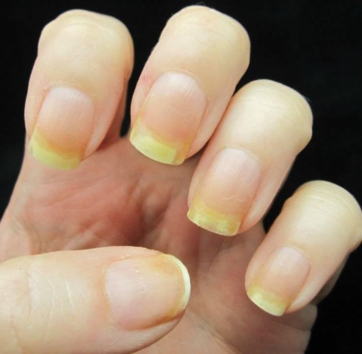Желтые пальцы от сигарет: как убрать никотиновые пятна? - здоровая семья