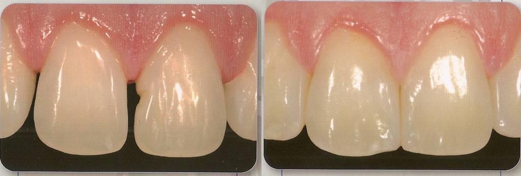 Сколько нельзя есть после пломбирования зуба: разные виды пломб