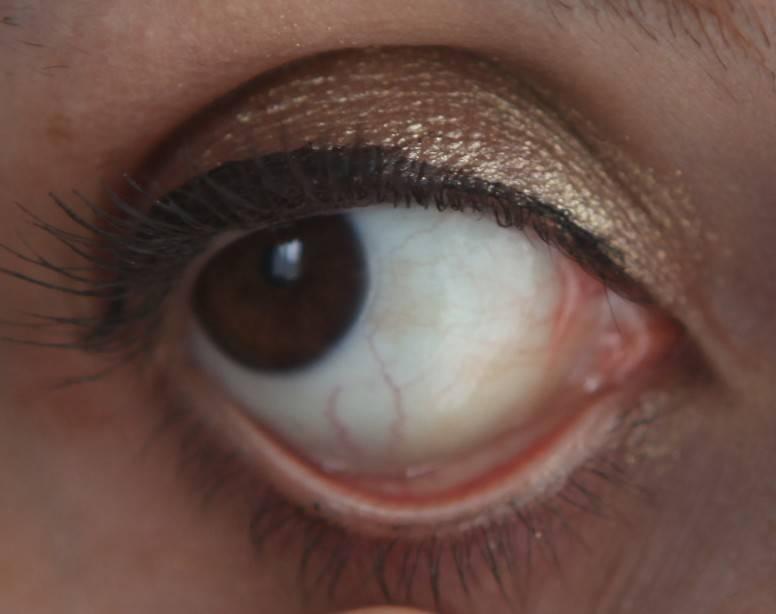 Желтый цвет лица: причины, что делать. желтые белки глаз - причины и лечение если желтые глаза и кожа - болезни и здоровье