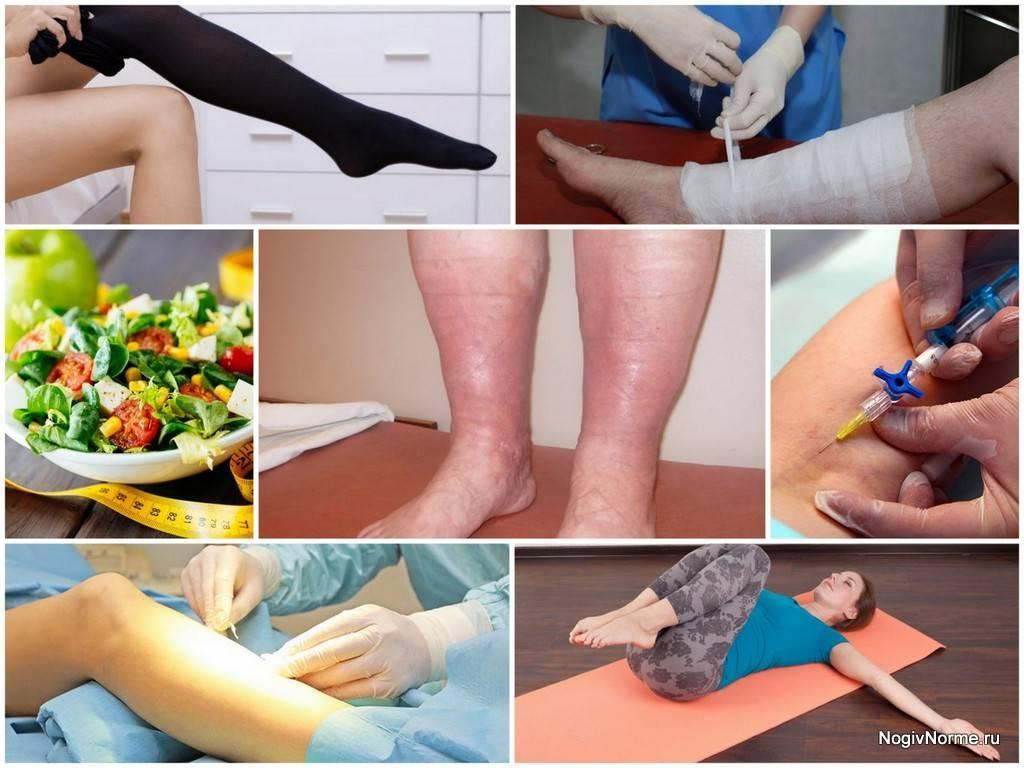 Лечение отеков ног: средства, препараты и методы. что делать и как снять отечность ног?