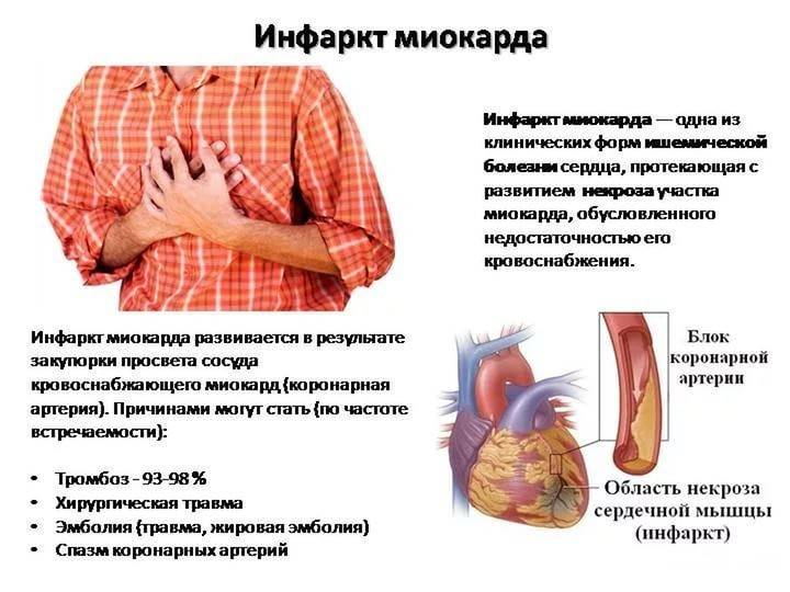Что делать, если болит сердце после алкоголя?