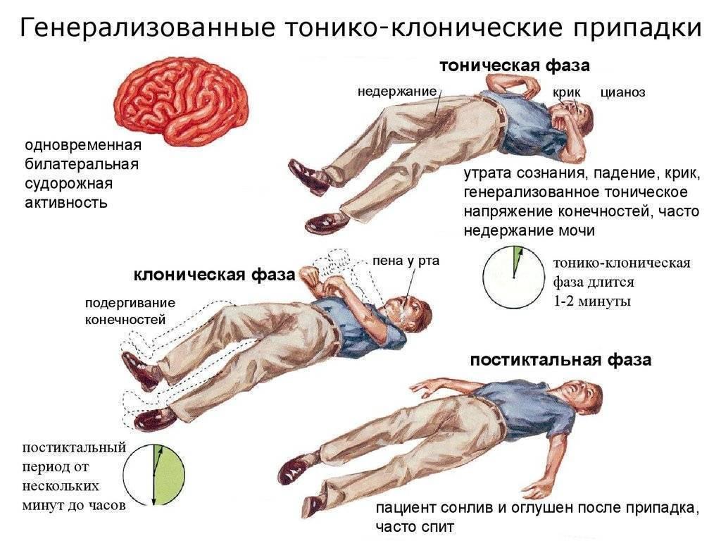 Алкогольная эпилепсия: симптомы болезни, лечение в домашних условиях с фото и видео и возможные последствия после алкоголя