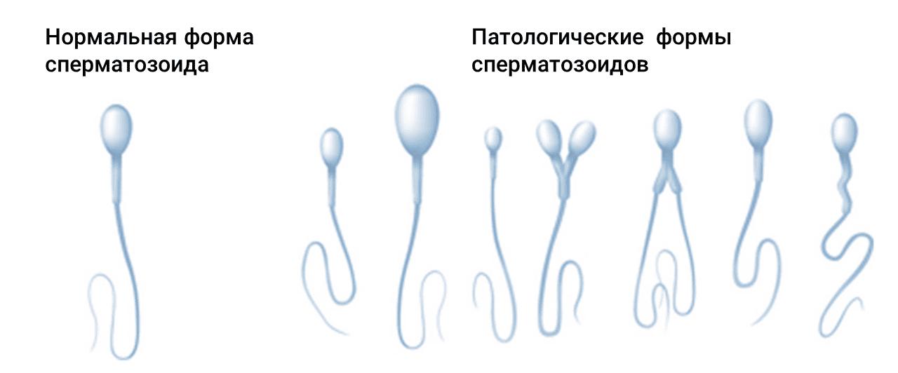 Алкоголь спермограмма
