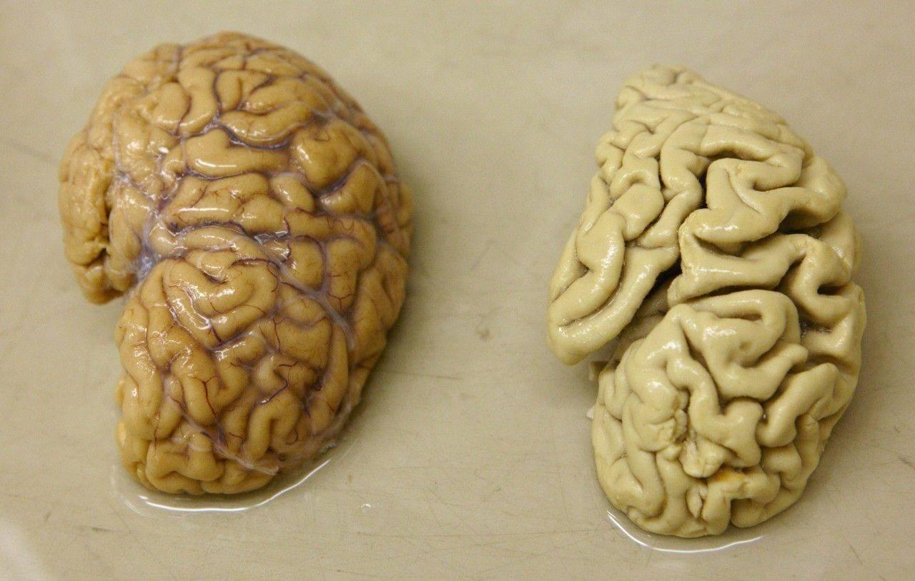 10способов остановить постепенную деградацию мозга