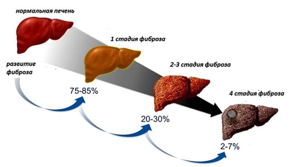 Асцит при циррозе печени: сколько живут, питание, диета, прогноз