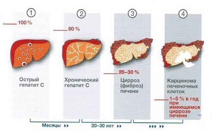 Температура при циррозе печени: что делать и как сбить