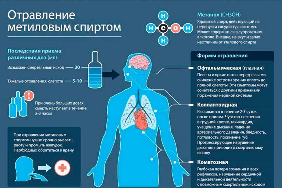 Отравление метиловым спиртом - симптомы, признаки