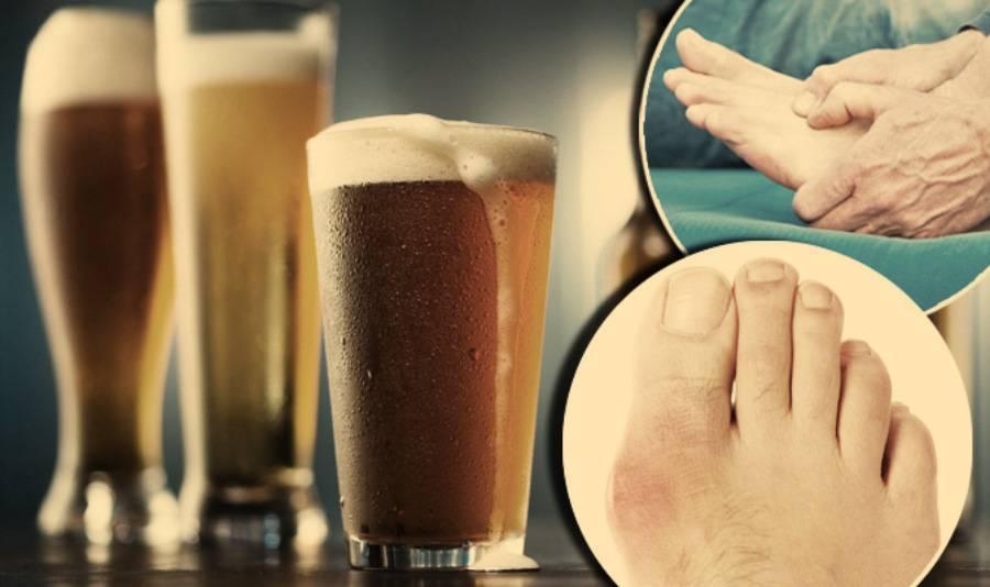 Какой алкоголь можно пить при подагре: как совмещать отдых и болезнь