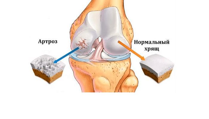 Если после алкоголя болят суставы: причины и что делать | все о суставах и связках | happinesswomen.ru
