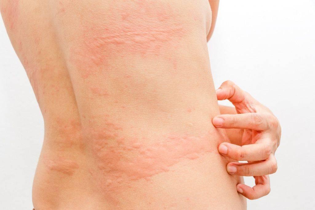 Крапивница: симптомы и ароматерапевтическое лечение