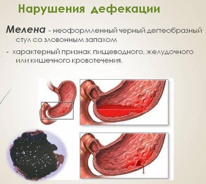 Понос с кровью у взрослого (кровавая диарея): причины появления на туалетной бумаге крови и слизи после жидкого стула