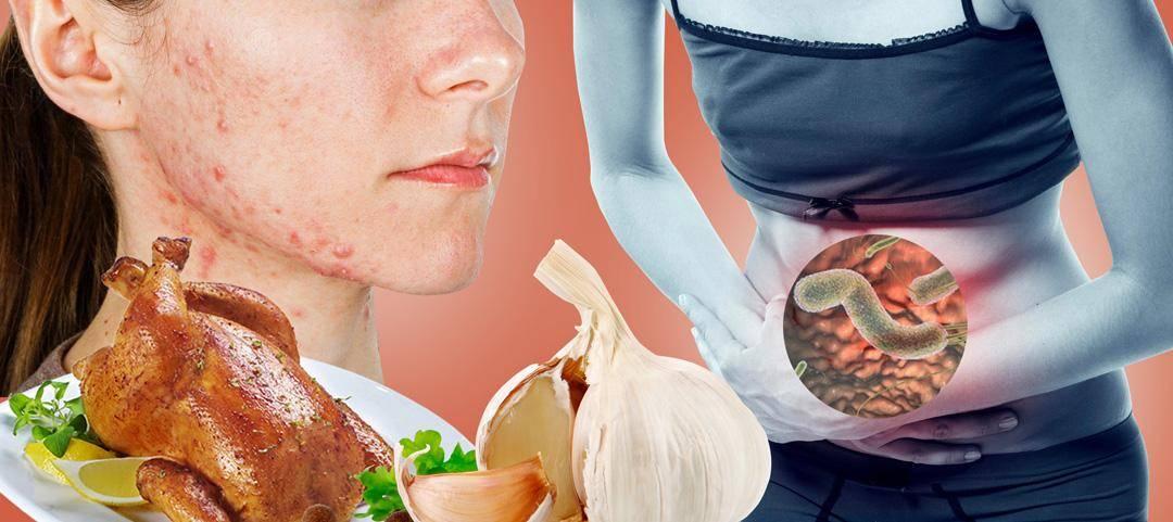 Народные средства от глистов у человека – рецепты
