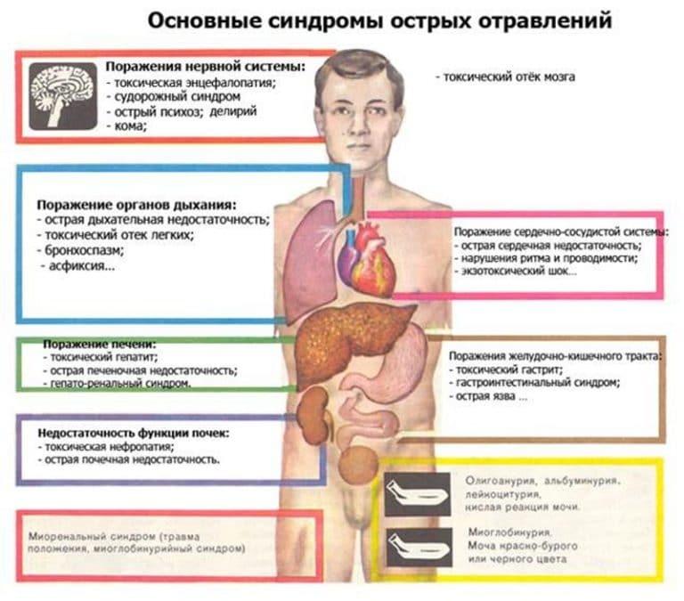 Отравление парами хлорамина: симптомы и первая помощь