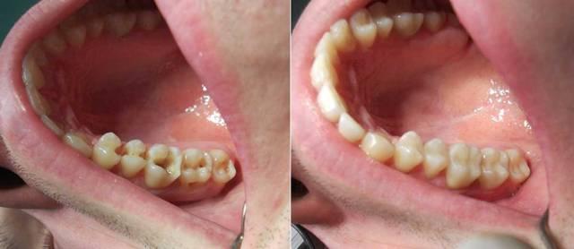 Можно ли пить воду после пломбирования зуба? | здоровье зубов