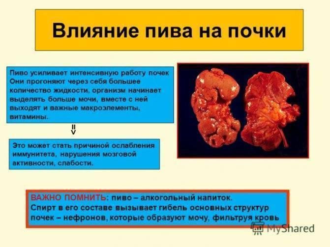Камни в почках — как алкоголь влияет на состояние больного