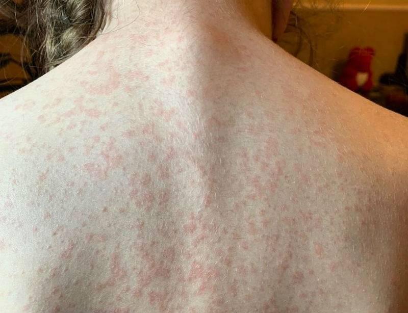Острая крапивница: фото с описанием симптомов, лечение и причины