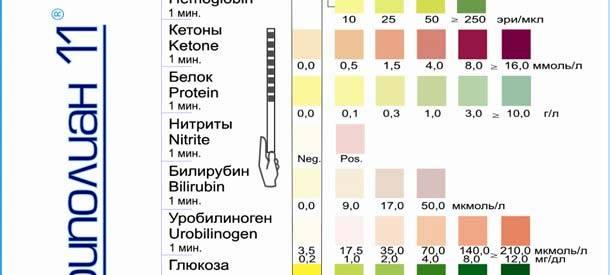Тест полоски для определения сахара в моче