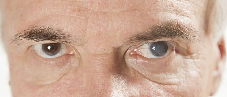 Катаракта глаза: что это такое, причины, симптомы, лечение и профилактика
