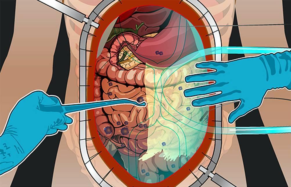 Асцит - причины, виды, осложнения, симптомы, диагностика, лечение, прогноз и профилактика