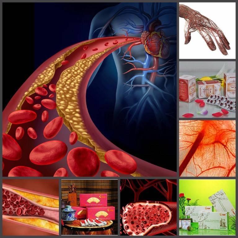 Влияние курения на уровень холестерина и развитие атеросклероза
